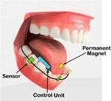 tongue drive system langue interface bouche